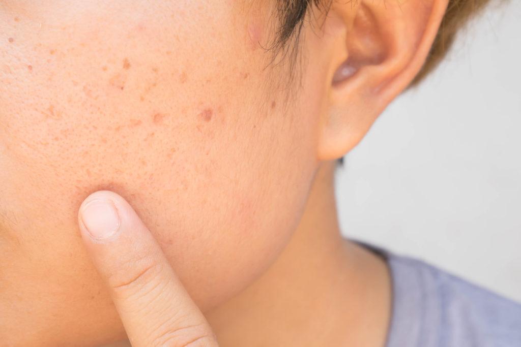 traitement des cicatrices à Montpellier - Dr Fournier