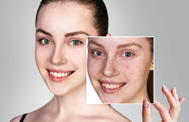 Traitement l'acné au laser à Montpellier - Dr Fournier