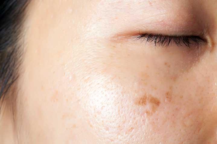 Le traitement des taches pigmentaires et de l'hyperpigmentation - Dr Fournier à Montpellier